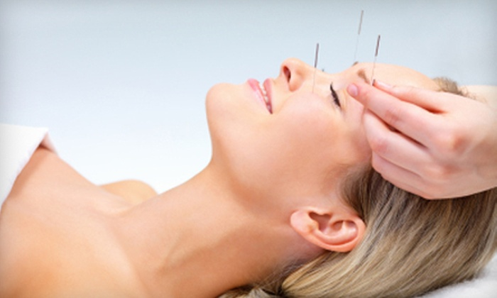 Blue Lotus Acupuncture - Jacksonville Beach: $35 for Two Acupuncture Treatments at Blue Lotus Acupuncture ($150 Value)