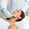 Up to 72% Off Microneedling Treatments at Skin Sational Spa