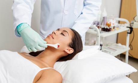 One or Three Microneedling Sessions at Cosmo Med Spa & Salon (Up to 67% Off) bd043c70-ecb4-4b35-993b-5c0eea852261
