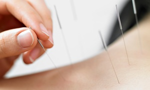 The Gathering Point Community Acupuncture: One or Three 60-Minute Acupuncture Sessions at The Gathering Point Community Acupuncture (Up to 57% Off)