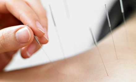 One or Three 60-Minute Acupuncture Sessions at The Gathering Point Community Acupuncture (Up to 57% Off)