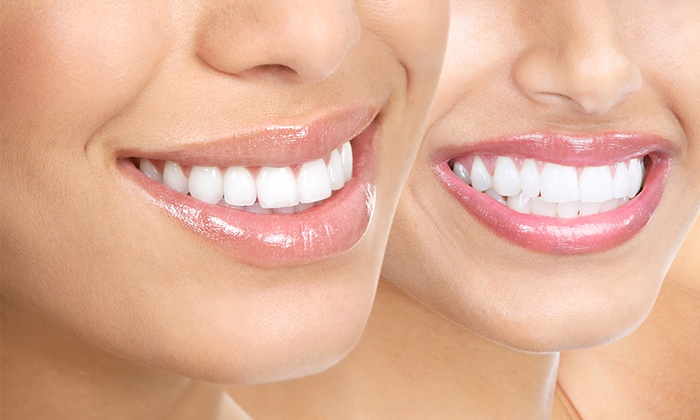 Dental Services And Whitening Ismile Dental Groupon
