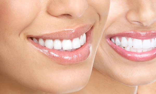 Dental Services And Whitening Ismile Dental Groupon