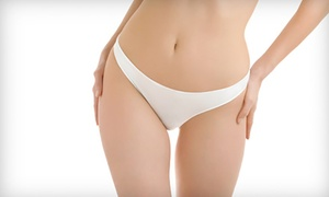 Inch To Inch: Ultrasonic Cavitation or Radio Frequency Treatment: One or Three Sessions at Inch to Inch (Up to 73% Off)