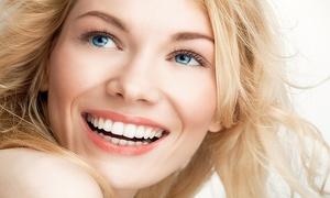 Hair Design: 1, 2 ou 3 séances de blanchiment des dents dès 39,99 € chez Hair Design