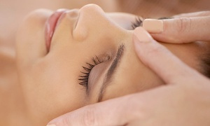 Centre Mèdic Balmes 353: 1 o 3 sesiones de eliminación de manchas en la piel con láser Q-switched