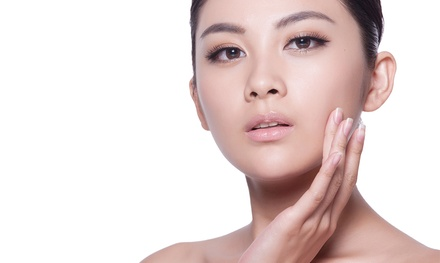 $85 for One Micro-Laser Peel at Luminescence Aesthetic Medicine ($150 Value)