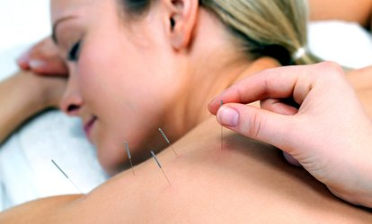 image for Session of Massage and Acupuncture with Consultation at West Hampstead Acupuncture (74% Off)