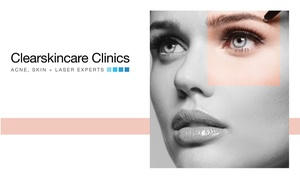 Clearskincare Clinics: $29 Skin Healing Stimulation Package with Light Therapy at Clearskincare Clinics, 43 Locations (Up to $115 Value)