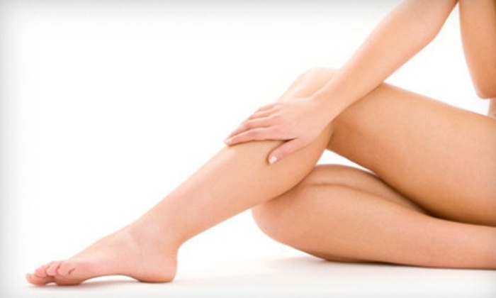 Mari Ann Laser Care - Gravesend: One, Three, or Six Laser Spider-Vein-Removal Sessions at Mari Ann Laser Care (Up to 86% Off)
