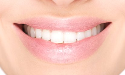 image for Clear Braces: One or Two Arches at 310 Dental Care (Up to 74% Off)