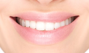 310 Dental Care: Clear Braces: One or Two Arches at 310 Dental Care (Up to 74% Off)