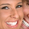 85% Off Home Teeth-Whitening Kit from Magic Smile