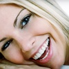 53% Off Teeth Whitening in Grenfell