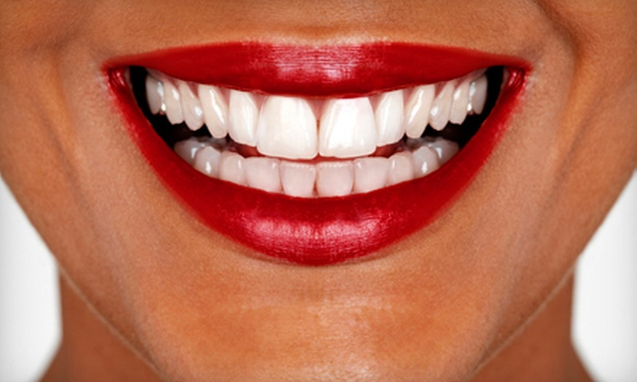 Dazzling White - Pleasant Grove West: $39 for a 30-Minute Teeth-Whitening Session at Dazzling White in Chesapeake ($159 Value)