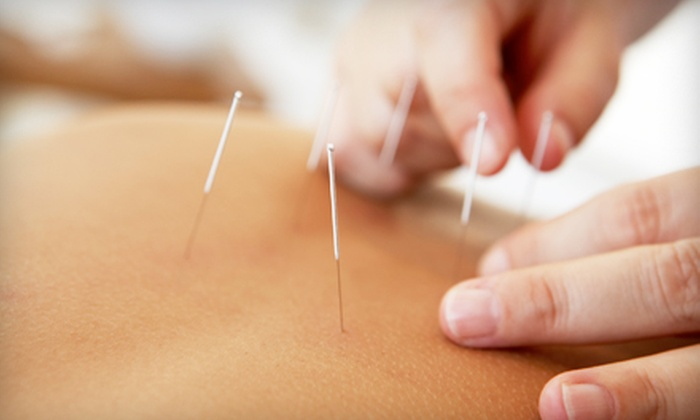 Comfort Acupuncture, LLC - Multiple Locations: Consultation and One or Three Acupuncture Treatments at Comfort Acupuncture, LLC (Up to 76% Off)