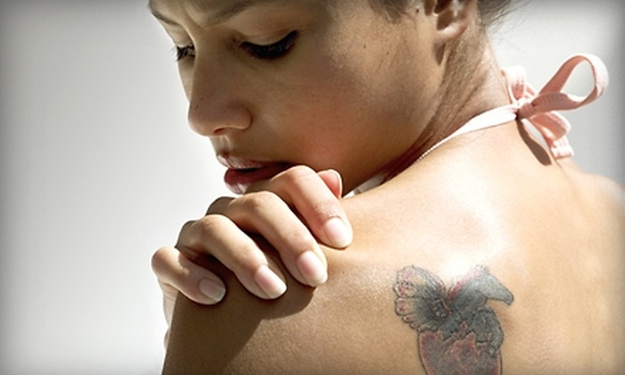 Fresh Med Spas - Colonialtown North: $95 for Laser Tattoo Removal Package from Fresh Med Spas