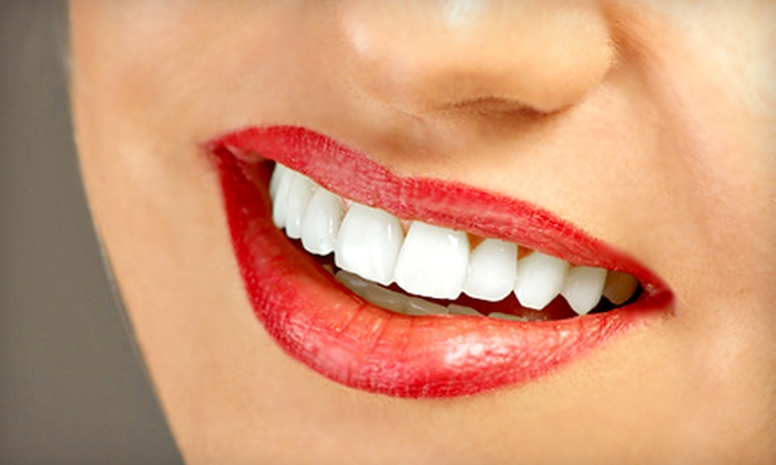 SmileLabs - Multiple Locations: Three or Six Teeth-Whitening Sessions at SmileLabs (Up to 70% Off)
