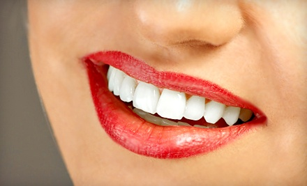 3 Teeth-Whitening Sessions (a $257 value) - SmileLabs in Sioux Falls