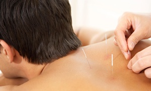Aqure Acupuncture Wellness Center: $35 for $70 Worth of Acupuncture — Aqure Acupuncture Wellness Center