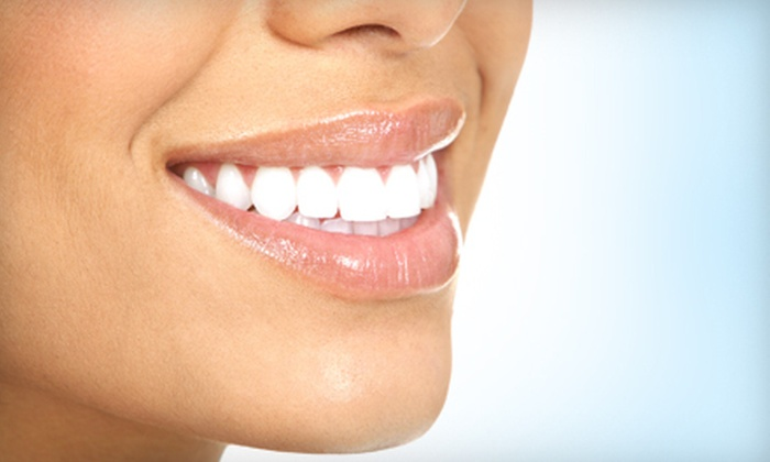 Signature Dental  - Northwest Meridian: $99 for a Teeth-Whitening Treatment at Signature Dental in Meridian ($400 Value)