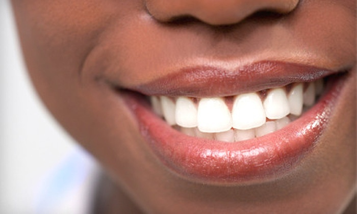 Faircourt Dental Smile Enhancement Studio  - Grosse Pointe: Sapphire Teeth-Whitening Session for One or Two at Faircourt Dental Smile Enhancement Studio in Grosse Pointe Woods (Up to 64% Off)