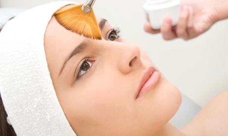 1 o 2 sesiones de peeling químico facial con ácido glicólico desde 19,90 € en CC Láser