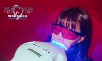 【最大87%OFF】見られる歯から見せる歯に。ワンコインからホワイトニング体験≪1日完結/セルフホワイトニング8分/1回 or 2回 o...