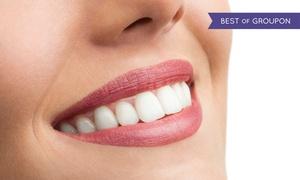 Zakątek Urody: Wybielanie zębów metodą White&Smile od 119,99 zł w Zakątku Urody
