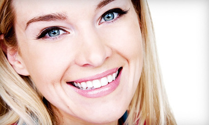 Body Beautiful Laser Medi-Spa - Multiple Locations: One, Two, or Three Teeth-Whitening Sessions at Body Beautiful Laser Medi-Spa (Up to 78% Off)