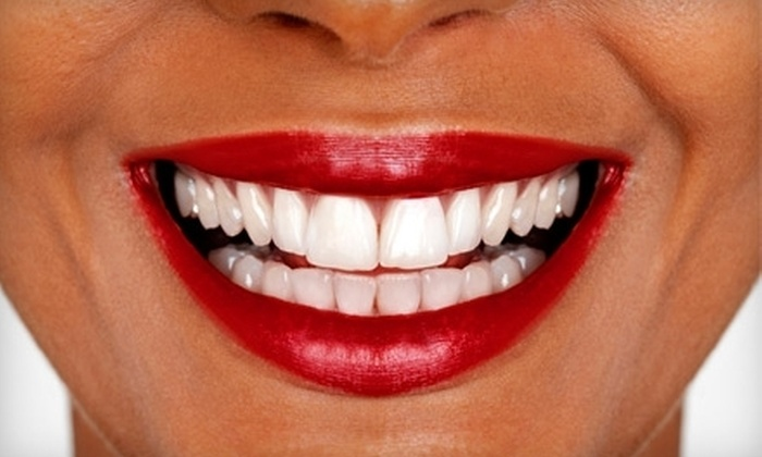 Center For Dentistry - Naperville: $139 for Teeth Whitening at the Center for Dentistry in Naperville ($650 Value)