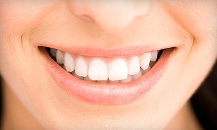 River Bend Dental Group - Evansville: $39 for Dental Exam, Cleaning, X-rays, and Take-Home Whitening Kit at River Bend Dental Group ($425 Value)