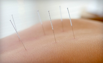 1 Acupuncture Treatment w/ Initial Consultation (a $155 value) - Lotus Acupuncture and Holistic Health Clinic in Virginia Beach