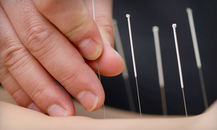 Acupuncture & Chinese Medical Center - Waukesha: $48 for Consultation, Acupuncture Treatment, and Cupping Treatment at Acupuncture & Chinese Medical Center in Waukesha ($135 Value)