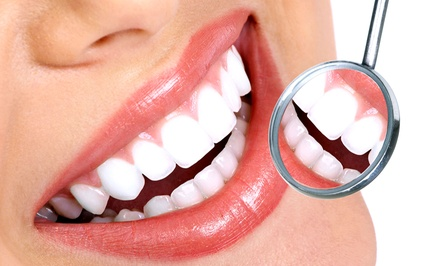 Dental Consultation with Exam or In-Office Whitening or Both at Denali Dental Services (Up to 83% Off)