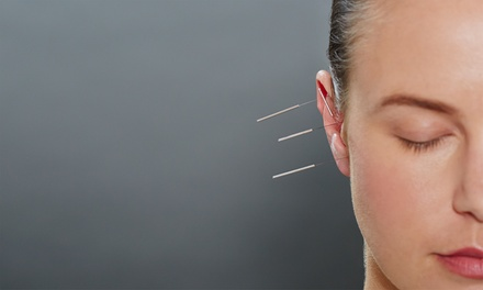 One, Three, or Six Acupuncture Treatments at New Life Acupuncture (53% Off)
