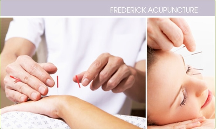 Frederick Acupuncture - New Market: $20 for 30-minute Acupuncture Session ($40 Value)