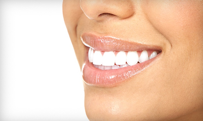 Amadeus Spa - Canton: $60 for One SpaWhite Express Teeth-Whitening Session at Amadeus Spa in Canton ($119 Value)