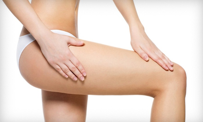 Rapha Vascular Specialists - Lakeshore: One or Two Sclerotherapy Spider-Vein-Removal Treatments at Rapha Vascular Specialists (Up to 71% Off)