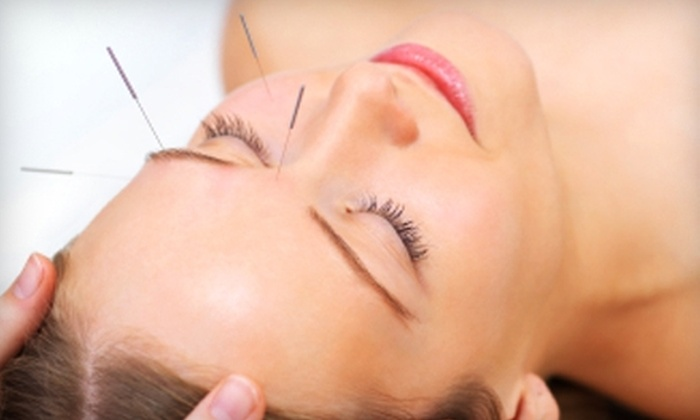 Acupuncture & Natural Healing - Dilworth: $129 for Three Acupuncture Treatments at Acupuncture & Natural Healing ($275 Value)