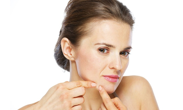 Mary Beauty Spa - Norgate: 60- or 80-Minute Acne Treatment Facial at Mary Beauty Spa (50% Off)