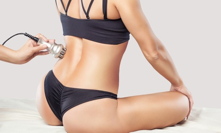 Los Angeles Liposuction - Deals in Los Angeles, CA | Groupon