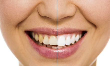 1x oder 2x 30 Min. kosmetisches Zahnbleaching inkl. Beratung bei Beauty & More (bis zu 68% sparen*)