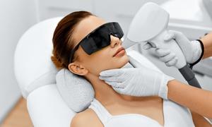 Gabinet Kosmetyki Laserowej: Depilacja laserem diodowym: 10 zabiegów za 299,99 zł i więcej opcji w Gabinecie Kosmetyki Laserowej