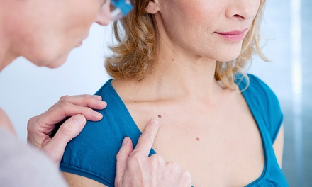 Skin Tag Removal at Emmanuel Medical Spa (Up to 73% Off). Three Options Available.