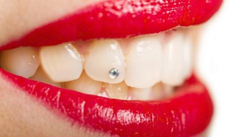 Colocación de brillante dental o limpieza bucal con opción a férula desde 12,95 € en Clínica Dental Franchy Roca
