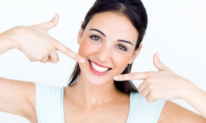 Venustas Friseur Kosmetik und Fishspa: 1x oder 2x kosmetisches Zahn-Bleaching für 1 Person bei Venustas Friseur Kosmetik und Fishspa (bis zu 41% sparen*)