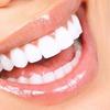 Kosmetisches Zahn-Bleaching