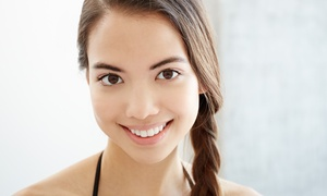 Timothy's A Spa: Salicylic or Lactic Acid Facial Treatment with Optional Microdermabrasion at Timothy's A Spa (Up to 61% Off)