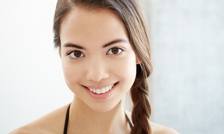 One or Two Acne-Clarifying Facials at Radiant Glow Aesthetics (Up to 60% Off)